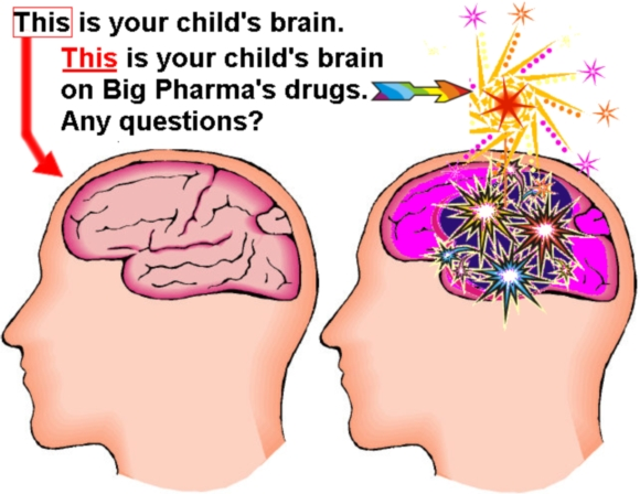 This is your child's brain. This is your child's brain on Big Pharma's 'wonder drugs'—Any questions?